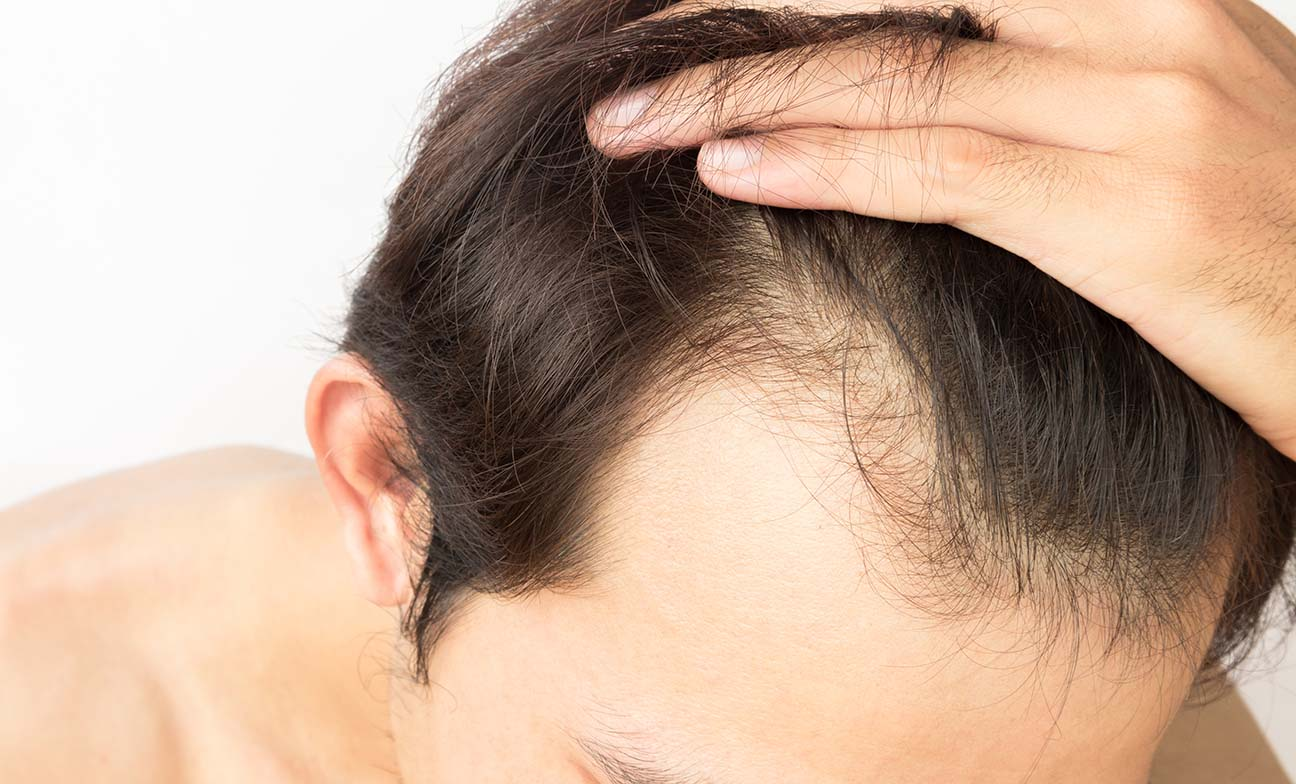 What is hair restoration surgery and should I get it?