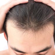 Combatting Hair Loss with Fish Oils